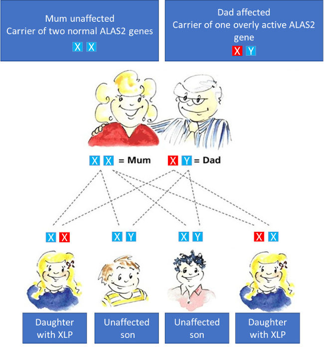 Are EPP and XLP inherited?